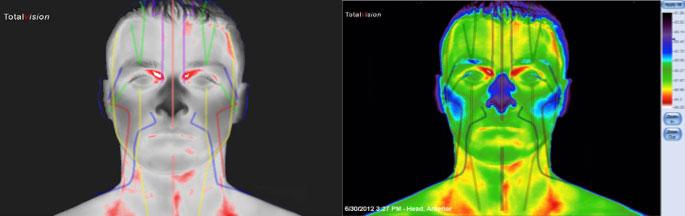 akupunkturni_meridiani-medicinska_termografija-TotalVision_pregled-07
