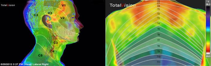 dermatomi-medicinska_termografija-TotalVision_pregled-08