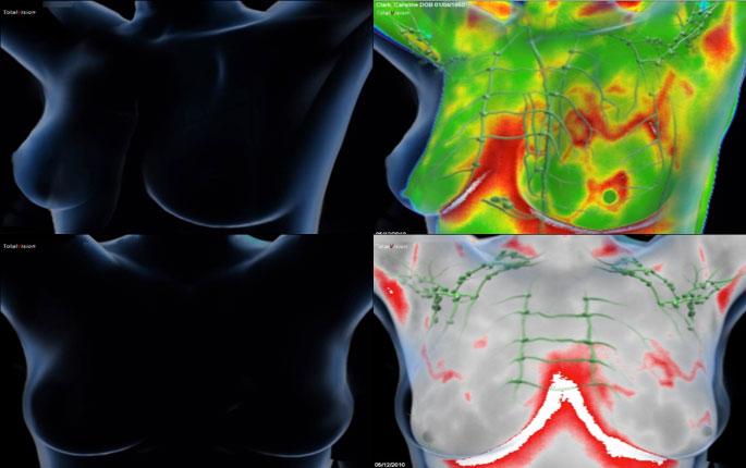 dojke-medicinska_termografija-TotalVision_pregled-10