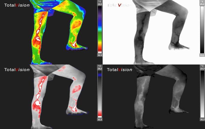 medicinska_termografija-TotalVision_pregled-02