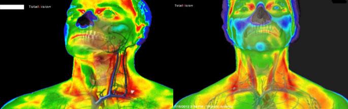 ožilja-medicinska_termografija-TotalVision_pregled-03