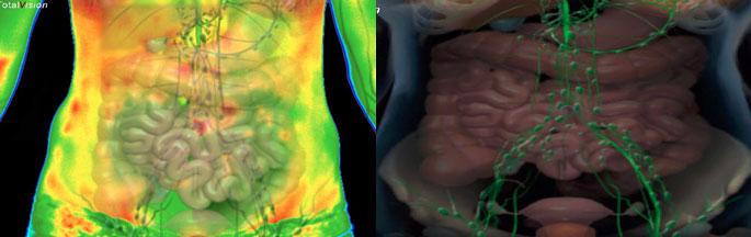 organov_in_organskih_sistemov-medicinska_termografija-TotalVision_pregled-05