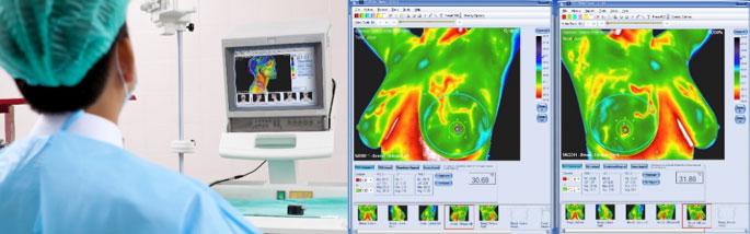 pregled-medicinska_termografija-TotalVision_pregled-11
