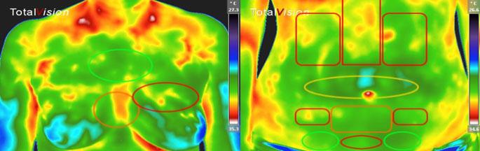 referenčne_regije_posameznih_organov-medicinska_termografija-TotalVision_pregled-09