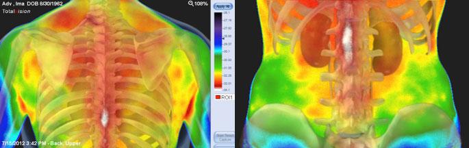 skelet-medicinska_termografija-TotalVision_pregled-06